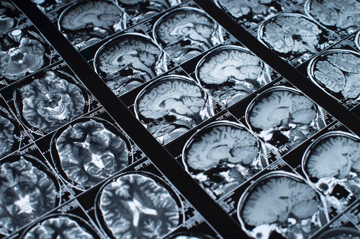 Senior Solutions - Brain Scans