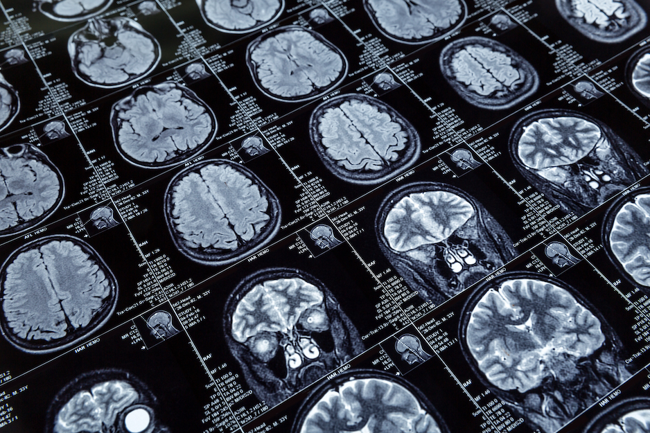 Senior Solutions Management Group Answers the Question: What is Alzheimer's Disease?