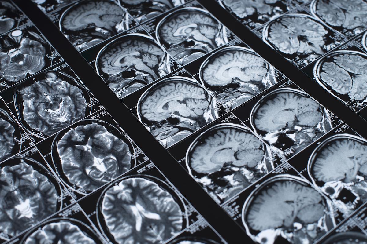 Senior Solutions Management Group - Brain Scans